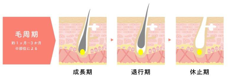 脱毛のホンネ 毛周期 成長期 退行期 休止期
