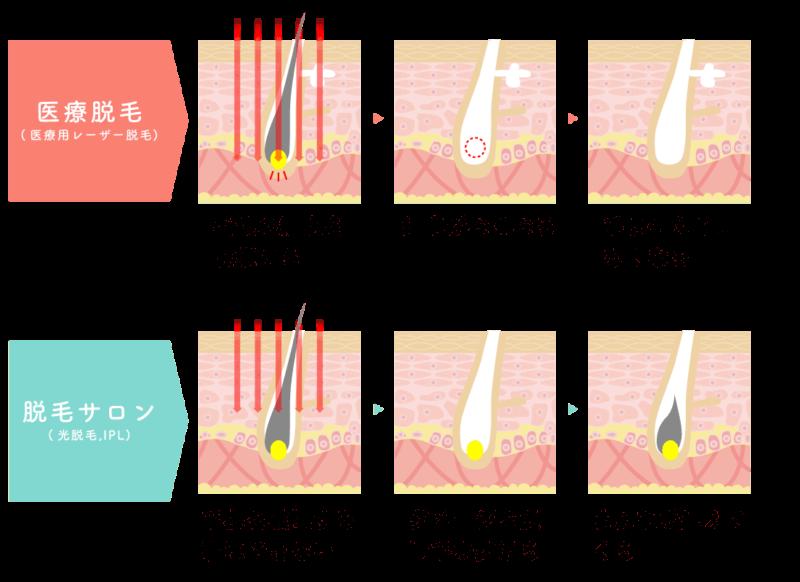 脱毛のホンネ 医療脱毛とエステ脱毛の照射中 毛根周辺の細胞の違い